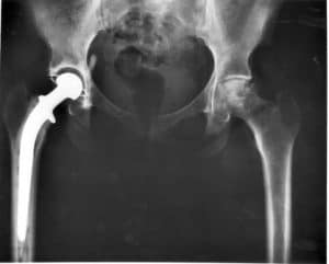 Xray of artificial hip