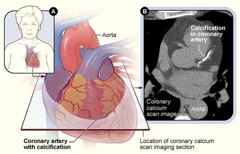 scan of coronary calcium